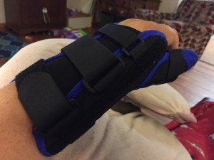 Hand and arm splint